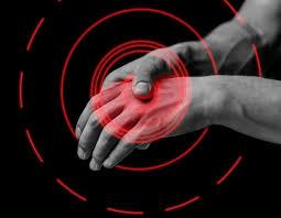 artritis3