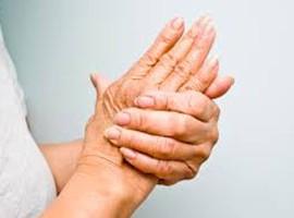 Es la deficiencia de vitamina D la causante de problemas artríticos?
