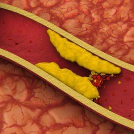 Quieres reducir tus niveles de colesterol de manera efectiva?